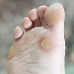 boule sous le pied sans douleur
