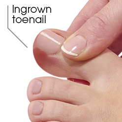 How to prevent and treat ingrown toenails | Uniprix