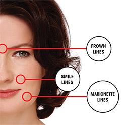 Understanding vertical lines and wrinkles | Uniprix