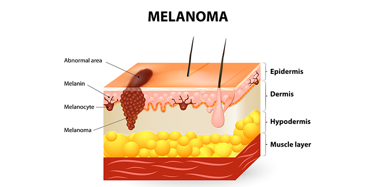 preventing malignant melanoma uniprix